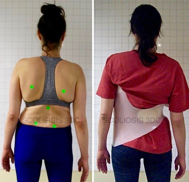 Adult scoliosis patient on the left without a scoliosis brace, and on the right, in a scoliosis brace designed to reset her spine to alleviate pain