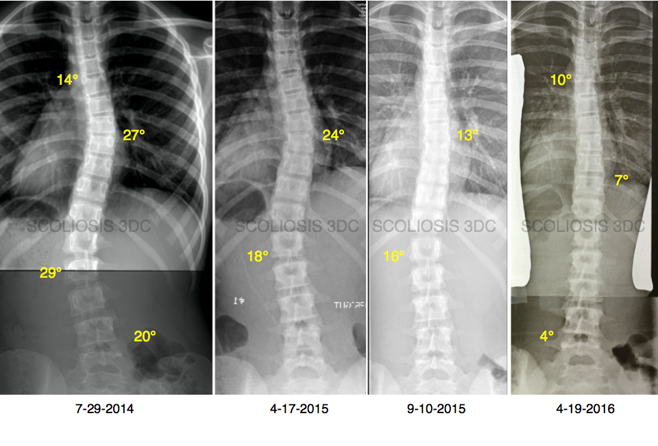 correct scoliosis without surgery