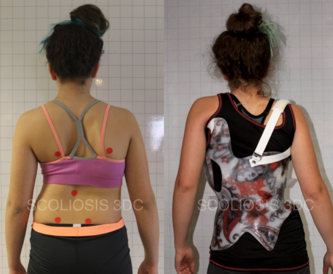 scoliosis brace to avoid scoliosis surgery