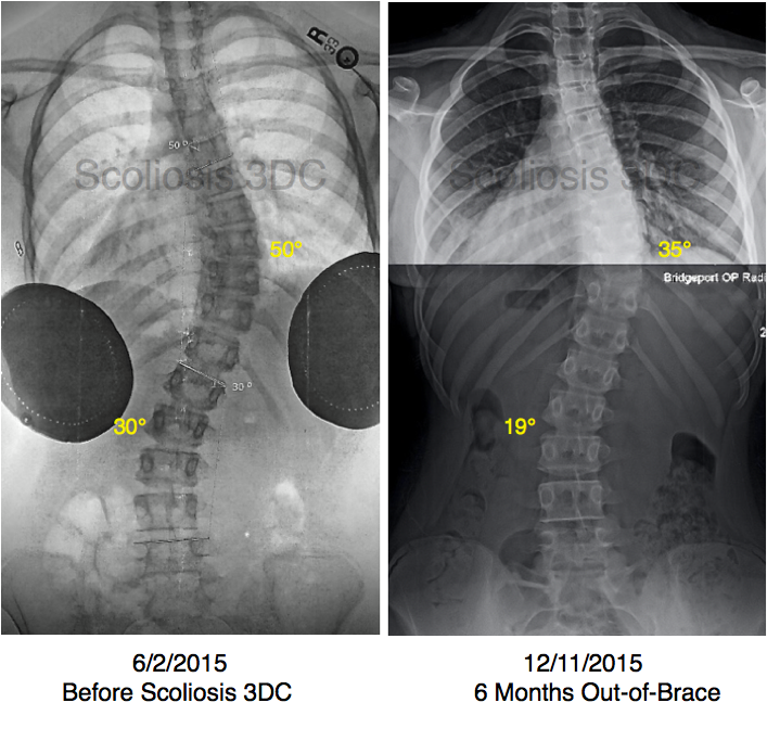 reduce scoliosis without surgery, scoliosis results