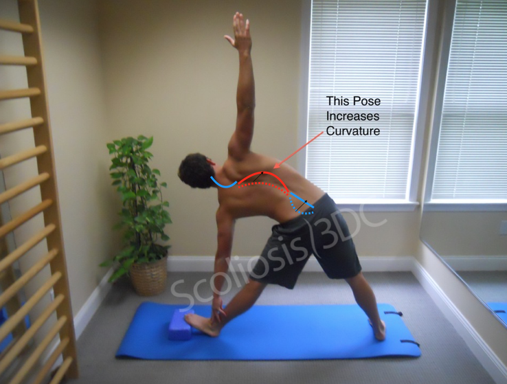 yoga and scoliosis, yoga poses for scoliosis