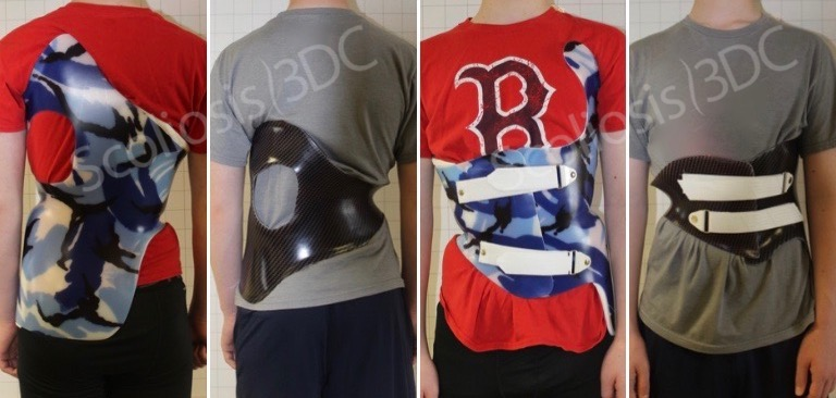 3D boston brace for scoliosis, cheneau gensingen brace for scoliosis