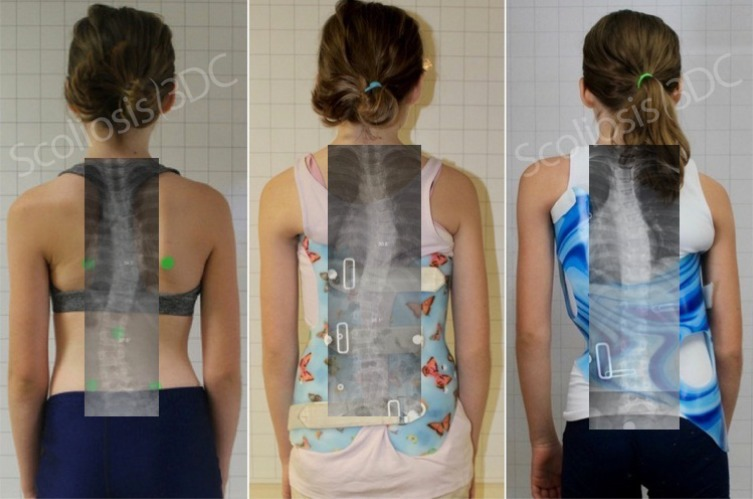 boston brace for scoliosis, gensingen brace for scoliosis, best back brace for scoliosis, in brace correction