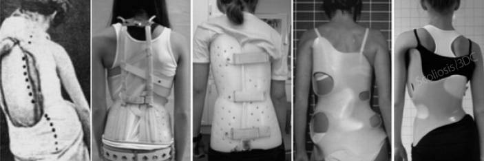 Various back braces for scoliosis